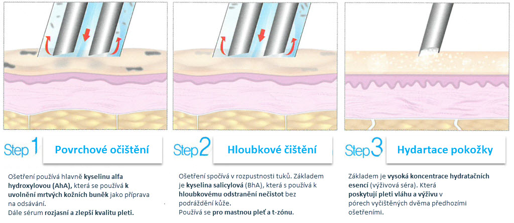 Jak probíhá aquapeeling?